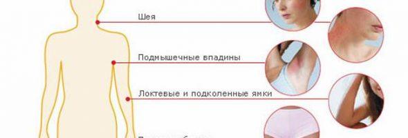 Виды дерматита на теле