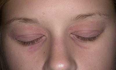 Экзематозный дерматит