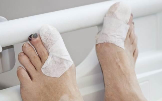 Волдыри на ногах при сахарном диабете фото