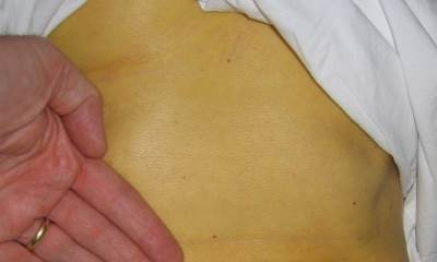 Признаки гепатита С у женщин