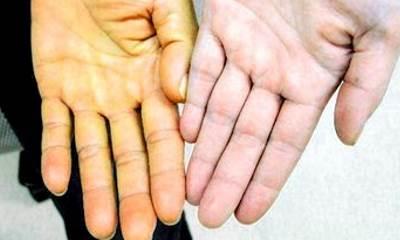 Признаки гепатита С у мужчин