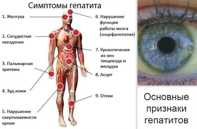 Внешний вид при гепатите фото thumbnail