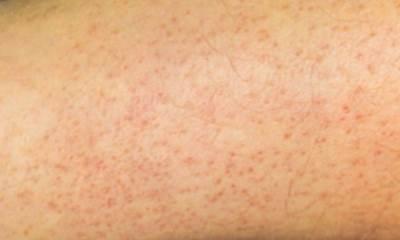Сыпь при гепатите С