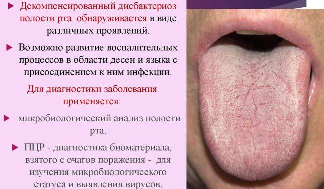Эритроплакия полости рта - причины, симптомы, диагностика и лечение
