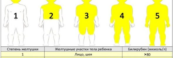 Как выглядит желтуха