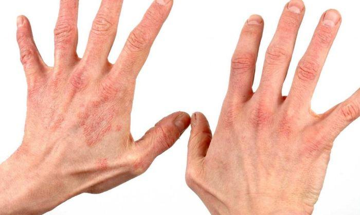 Симптомы аллергии на холод у взрослых