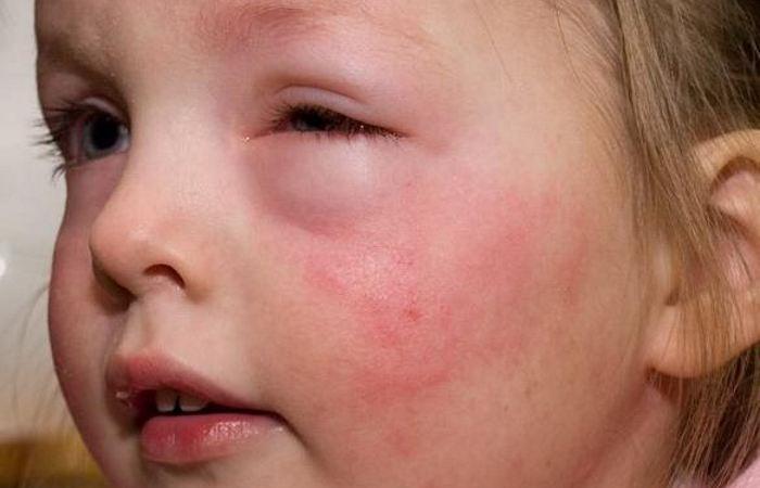 Симптомы холодовой аллергии