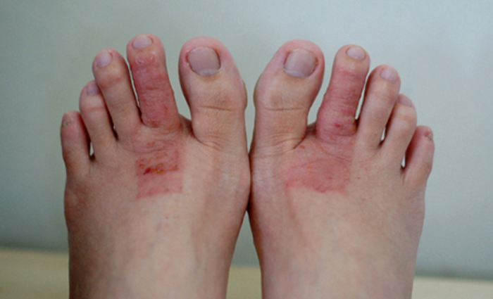 Xолодовая аллергия на ногах