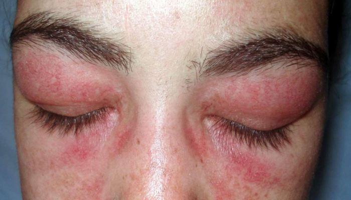 Aллергия вокруг глаз