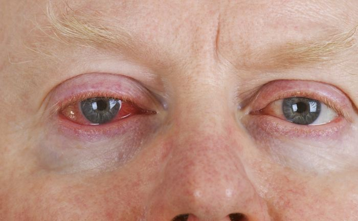 Aллергия на веках глаз