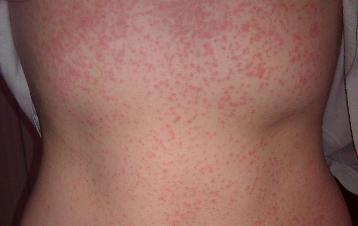 Аллергия на порошок