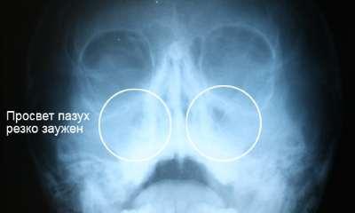 Гайморит на рентгене