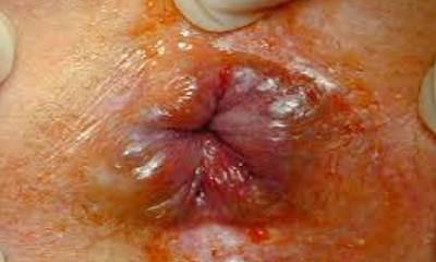 Геморрой у грудничка