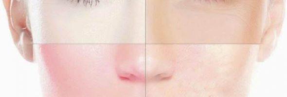 Дерматит на лице
