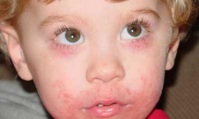 Как выглядит дерматит на лице