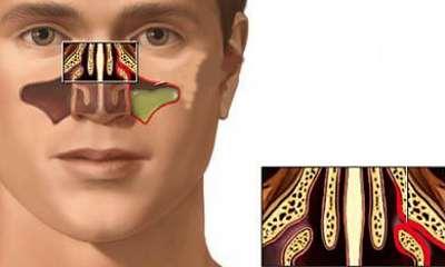 Катаральный гайморит