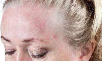 Контактный дерматит на лице
