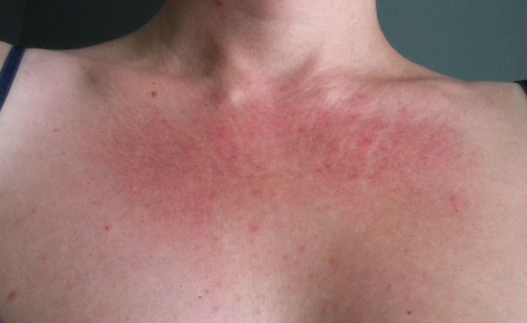 Аллергия на духи