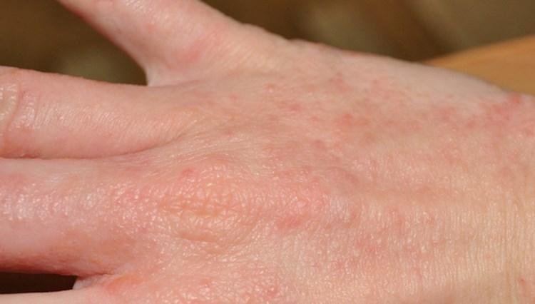 Аллергия на мыло