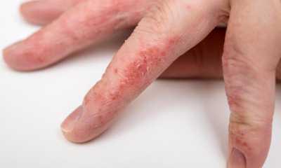 Дерматит на пальцах рук