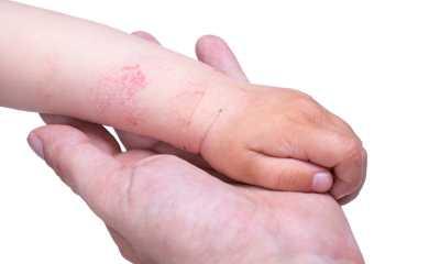 Как выглядит атопический дерматит у детей