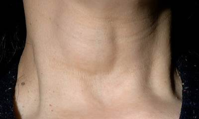 Отек шеи при остеохондрозе
