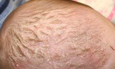 Себорейный дерматит у грудничка