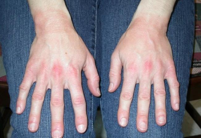 Аллергия на резиновые перчатки