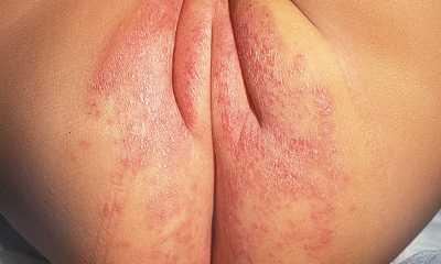 Пеленочный кандидозный дерматит